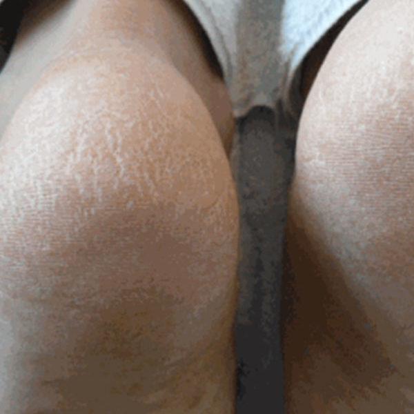 very-dry-skin-ba